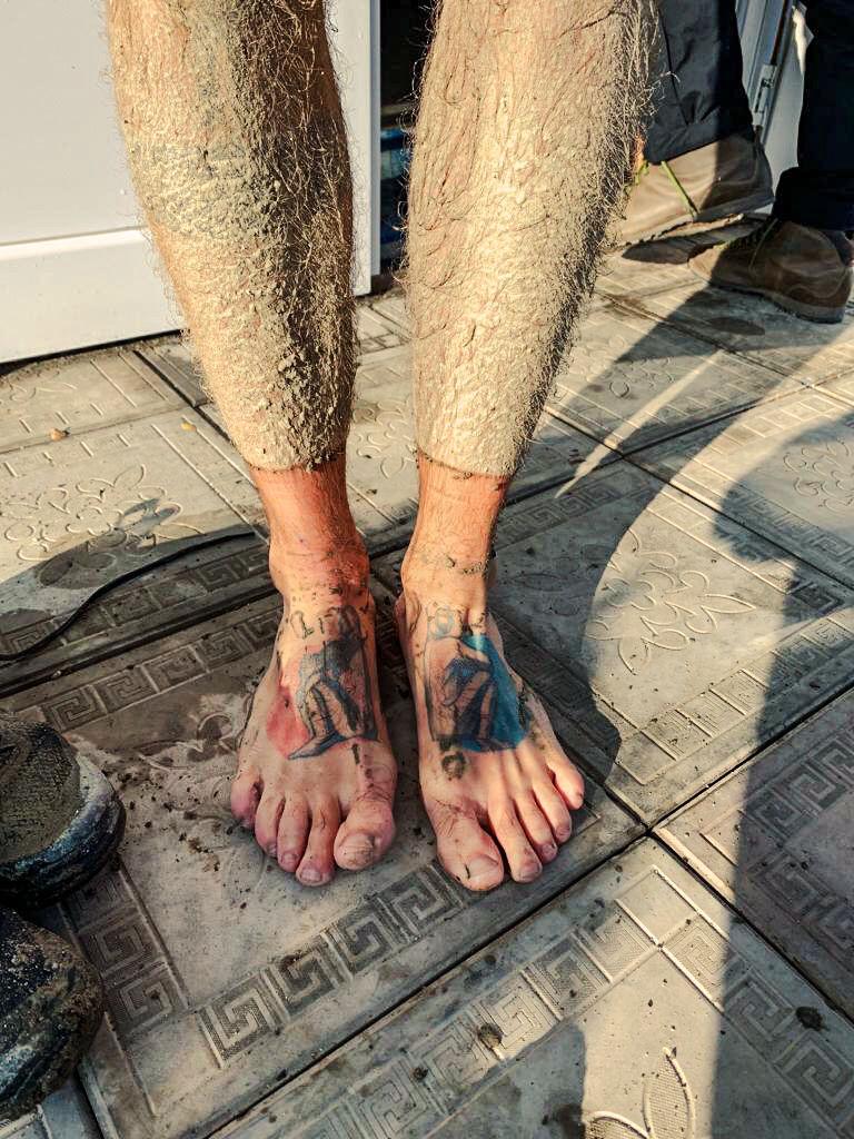 Dirty legs.