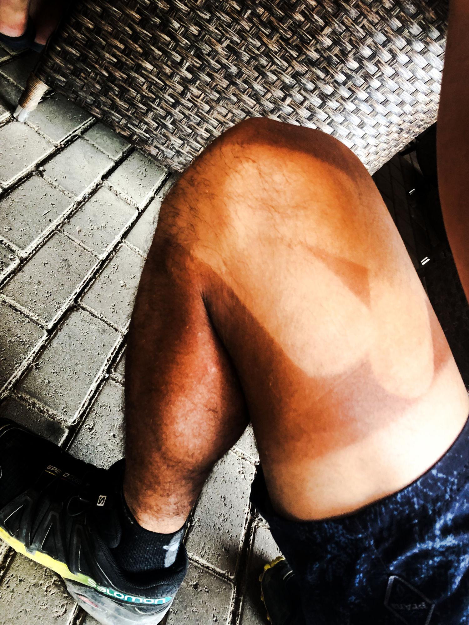 Taped knees